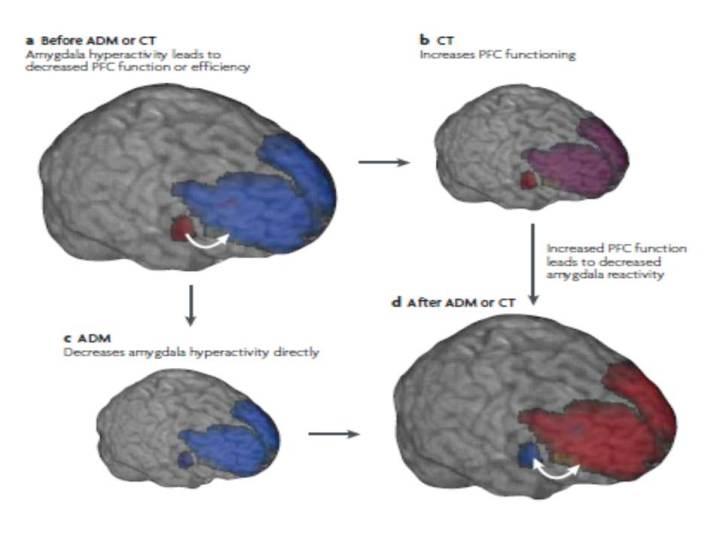 Hipotesis perbaikan kerja otak dengan CBT/CT dan anti depresan (ADM). (DeRubeis, Siegle & Hollon, 2008).