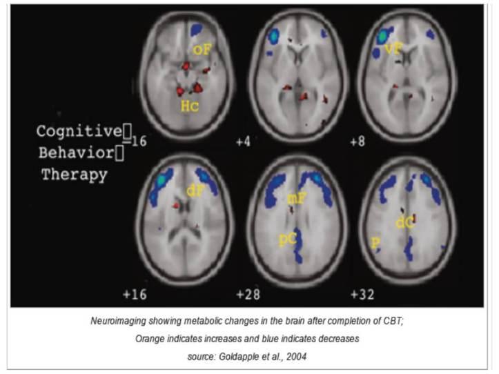 Perbaikan aktivitas kerja otak dengan CBT. (Goldapple, Segal, Garson, Lau, Bieling, Kennedy, & Mayberg, 2004).