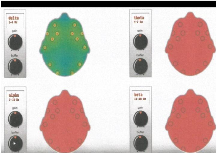Hasil EEG.jpg
