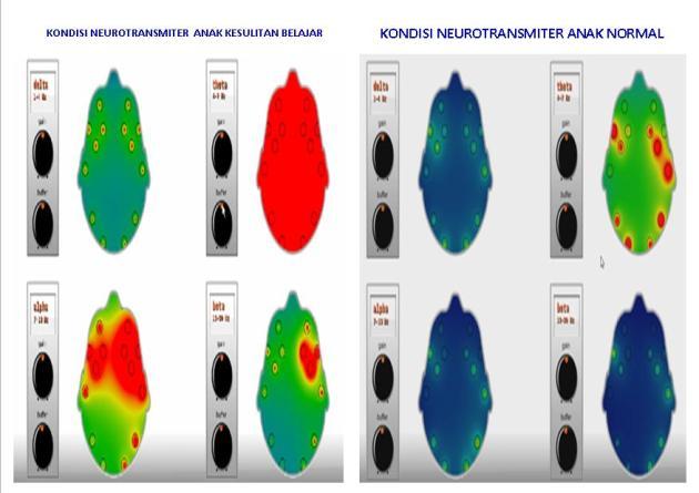 EEG Anak Normal vs Anak Kesubel