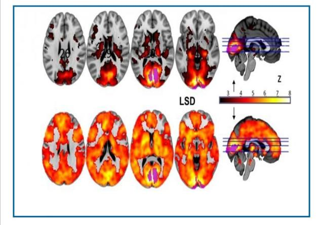 psychedelic brain improvement