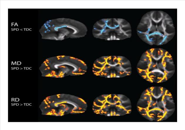 Pencitraan Otak Sensori Integrasi