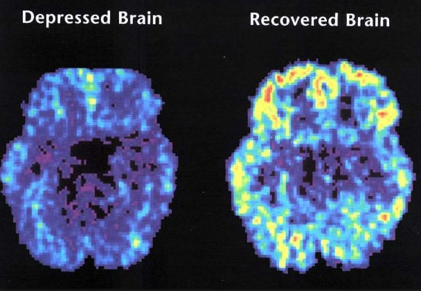 Depression brain