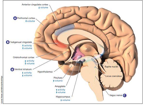 Otak MDD